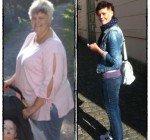 Gick ner 80 kilo på ett år med gastric bypass