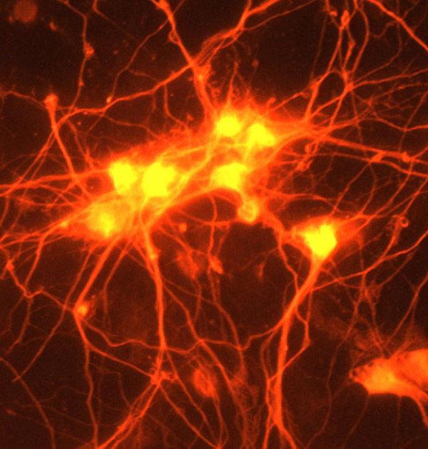Kopplingar mellan nervceller i hjärnan heter synapser.