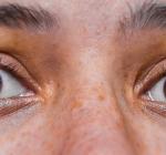 Ögonlaser-kliniker