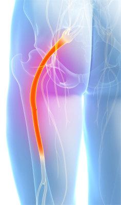 värk strålar ner i benet
