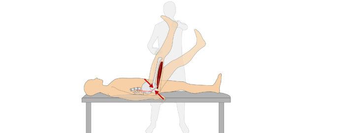 Läkare kan använda det så kallade Lasegue-testet för att utvärdera om din smärta är ischias. Det är ett enkelt självtest du kan pröva hemma.