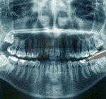 Odontologisk radiologi