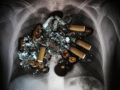 Röntgenbild på lungor med cigaretter