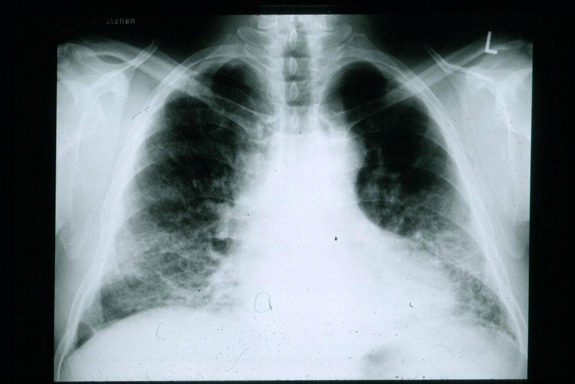 Lungfibros röntgenbild