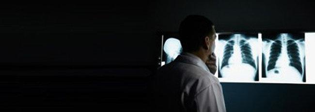 Läkare tittare på röntgenbilder