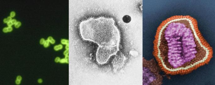 Bakterier och virus som orsakar lunginflammation