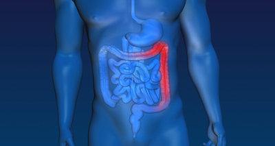 Ulcerös kolit – Tarmsjukdomar.se 4d94f6045b5bc