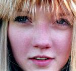 Test: Är dina hudproblem rosacea?