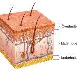 Olika hudslipningar för olika hudproblem