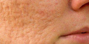 slipa huden i ansiktet