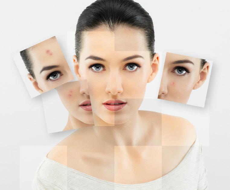 diy ansiktsmask mot finnar