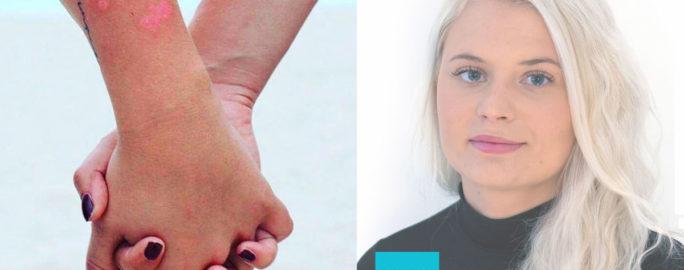 ung-med-psoriasis-liza-fram