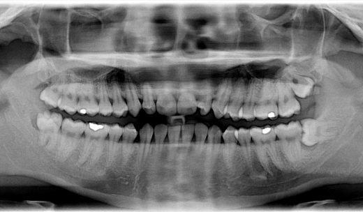 rontgen-mun-tander