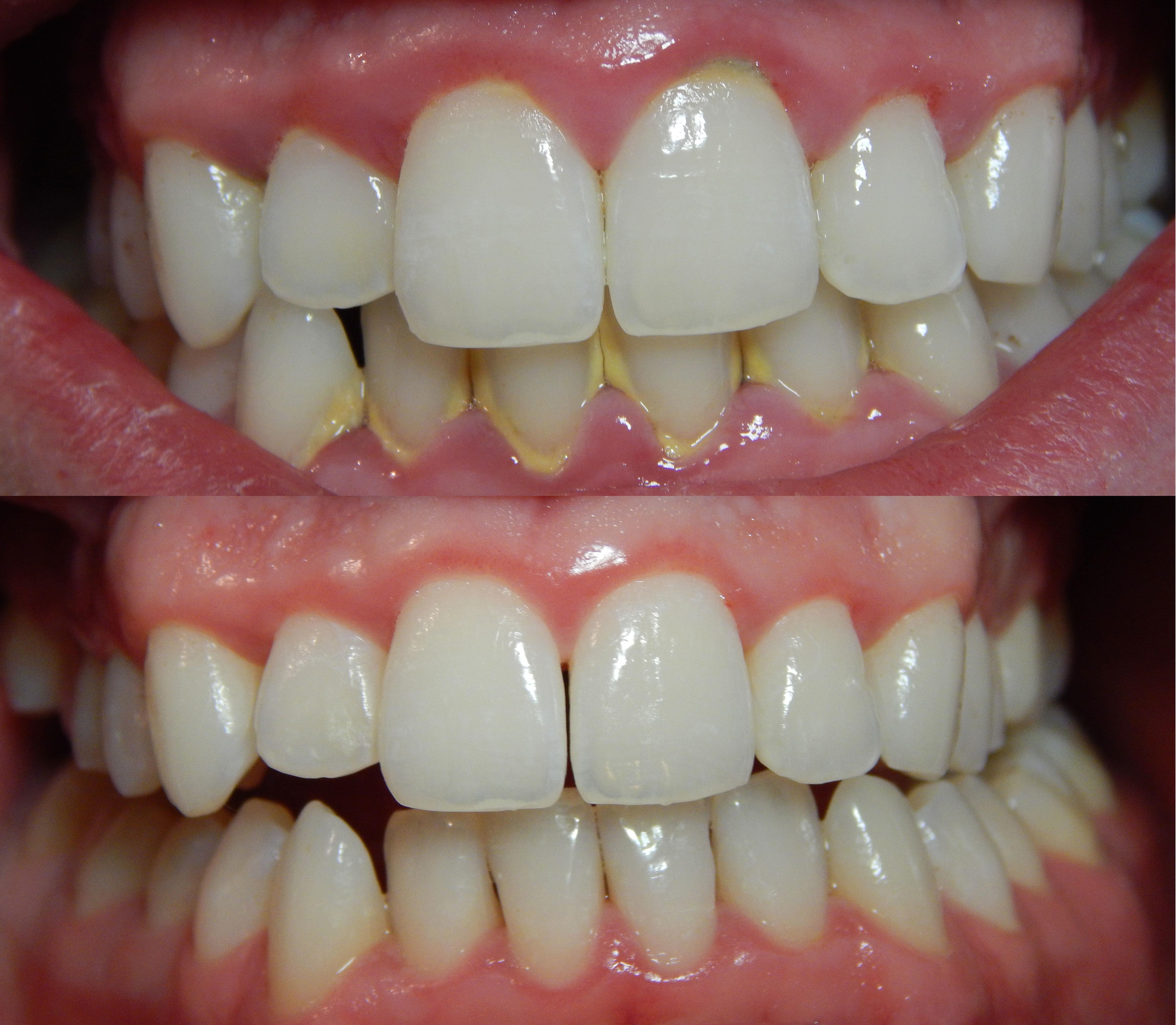 tandsten mellan tänderna
