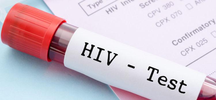när kan man testa sig för hiv