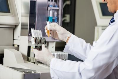 Forskare analyserar urinprov.