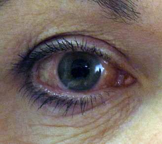 förhöjt tryck i ögat
