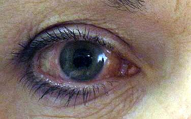 Starroperation vid grön starr