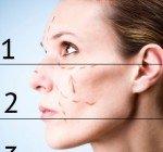 Kirurgiskt ansiktslyft
