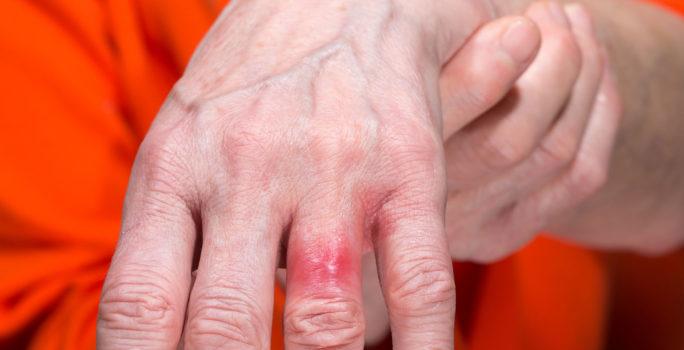 Nickelallergiutslag på ringfingret.