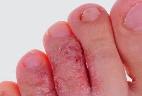 symptom på fotsvamp