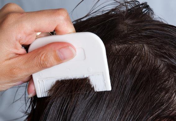flatlöss i håret