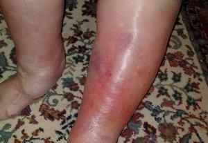 Symptom på rosfeber