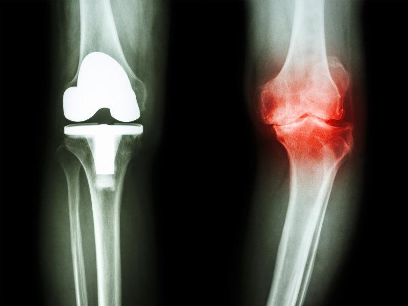 behandling av artros i knä