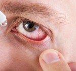 Vanliga ögonproblem