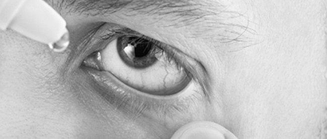 4fd1017f20e5 Vanliga ögonproblem – Öga.se