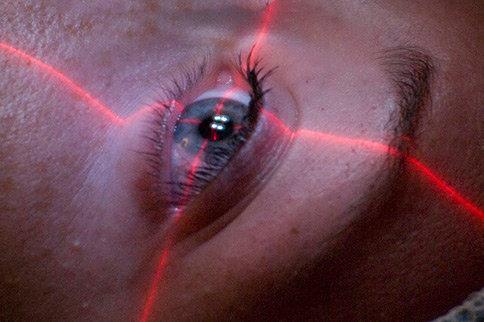 eye-laser-liten