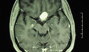 ensidig huvudvärk hjärntumör