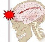 Hjärnskakning