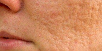 hemmagjord ansiktsmask mot ärr