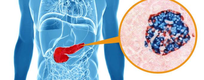 insulin-diabetes-omogen