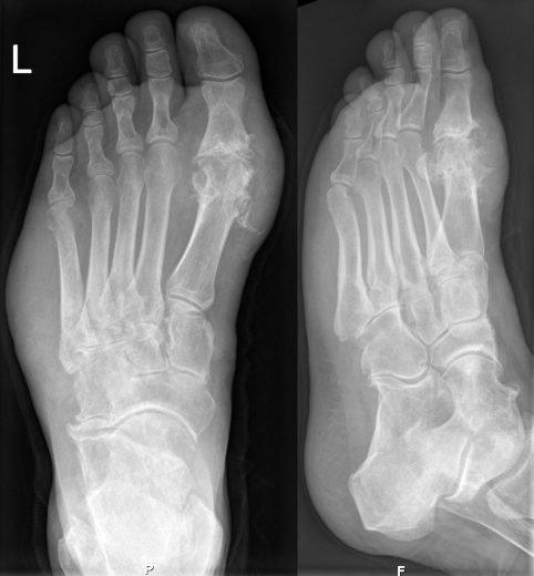 Röntgenbild som visar ett tydligt exempel på gikt i foten.