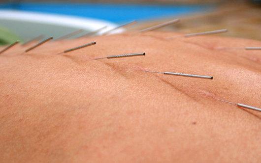 akupunktur mot foglossning