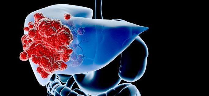 tumör i levern