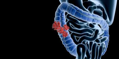 prognos vid tjocktarmscancer