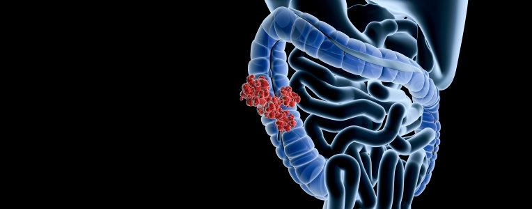 hemorrojder cancer symptom