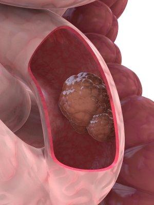 tumör på tjocktarmen