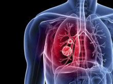 tumör i lungan