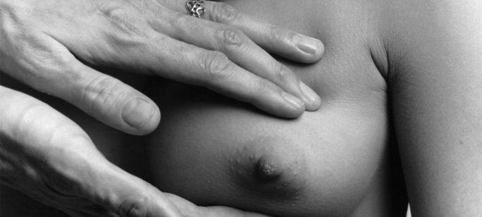 Bröstcancerscreening