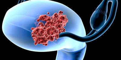 Nya möjligheter för att tidigt upptäcka livmodercancer