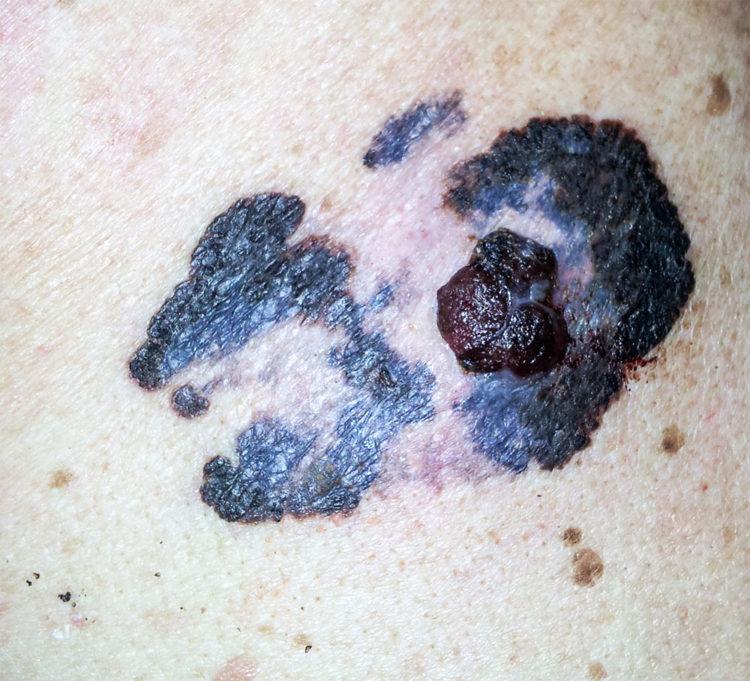 Bild på malignt melanom