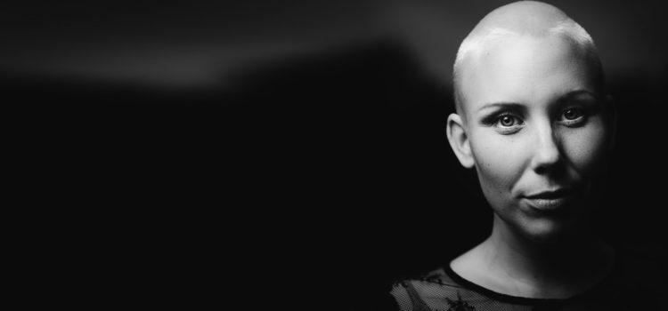 Kvinna utan hår efter strålbehandling, en vanlig behandling mot flera olika cancerformer.