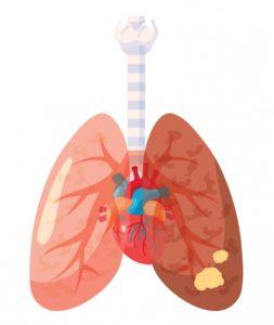 Illustration av lungcancer