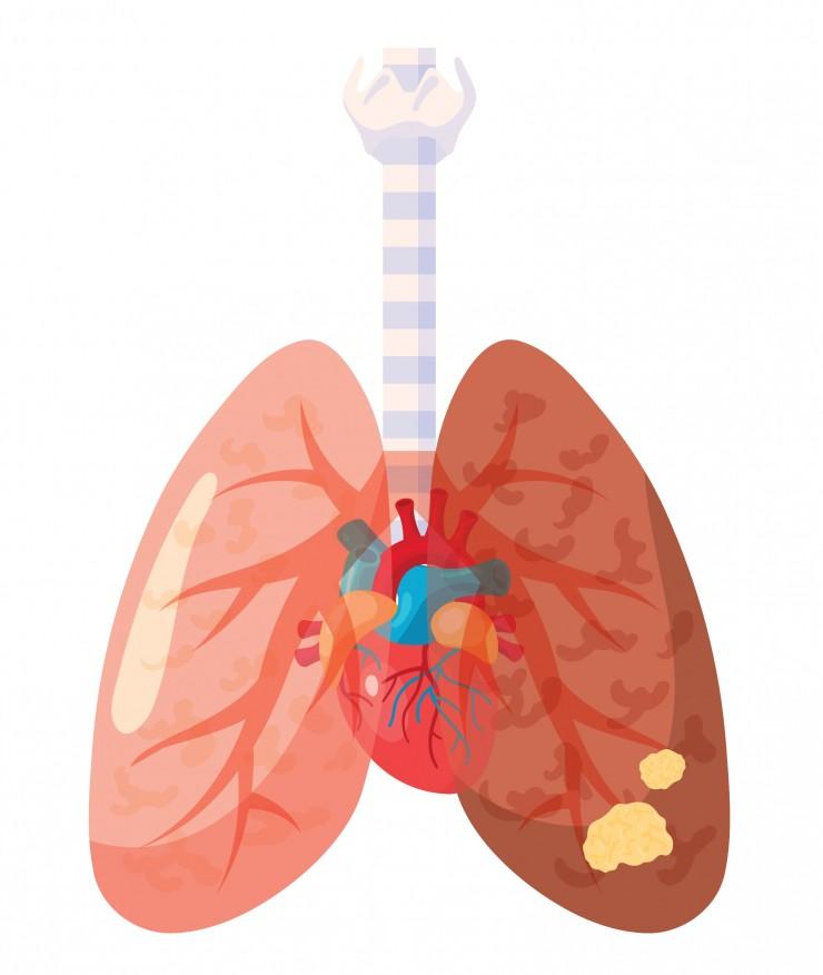 cancer i lungan symptom