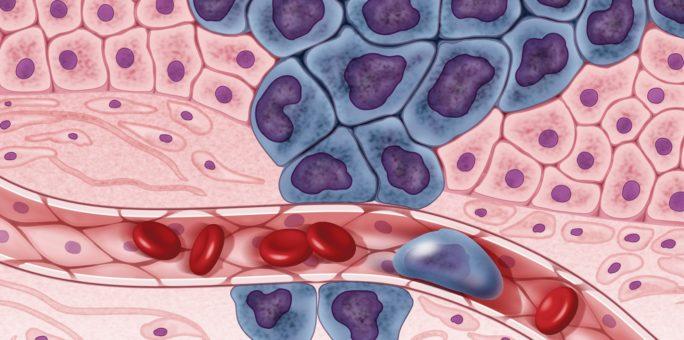 Cancer metastasering