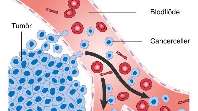 Cancerceller metastaserar